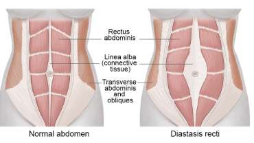 Diastasis Recti: Why Ab Separation Happens and How It's Treated